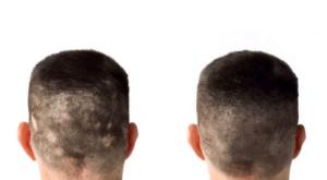 Alopecia Back of Head Image