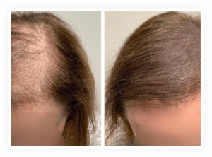 Hair Transplant Example Image