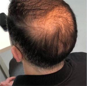 Balding Scalp Image