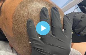 Scalp Surgery Thumbnail Image