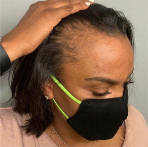 Woman Receding Hairline Image
